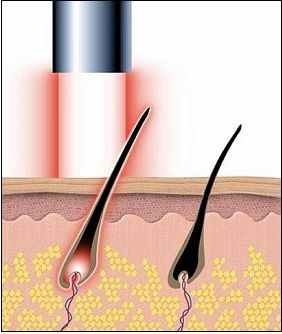 Niebanalne Fryzury Intymne Pióropolis Artykuły Do Przedruku